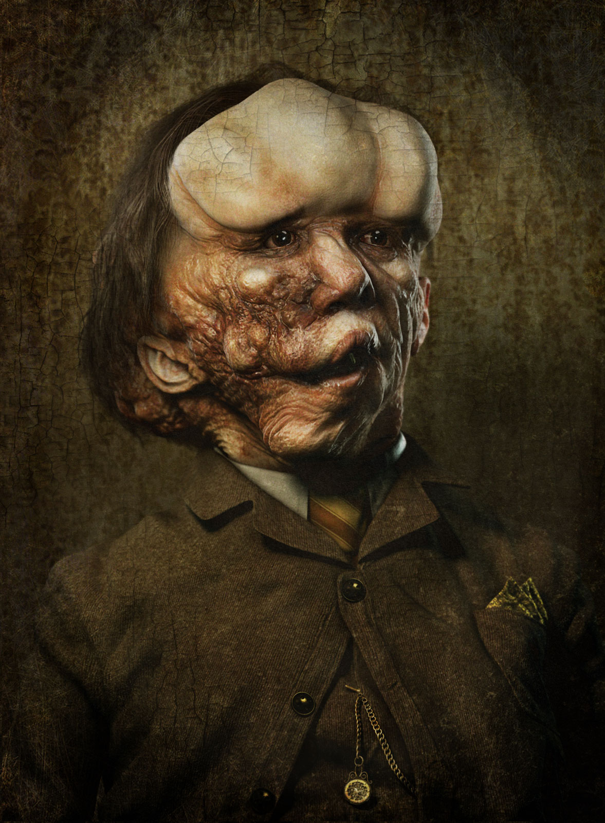 joseph-merrick-portrait